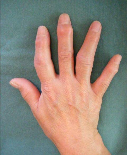 の こわばり 手指